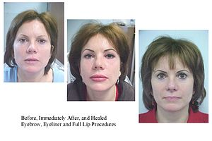 Permanent makeup - Permanent makeup: before, immediately after, and healed - brow, eyeliner, and lip procedures