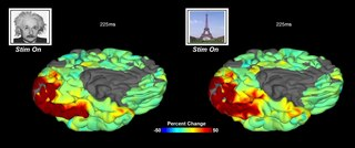 File:Development-of-grouped-icEEG-for-the-study-of-cognitive-processing-Video1.ogv