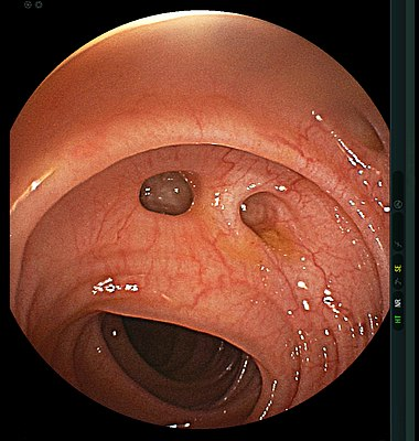 Diverticulum of the colon.jpg