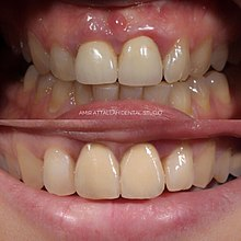 Replacement of unaesthetic crowns on the upper central teeth after undergoing crown lengthening and fabrication of new restorations.