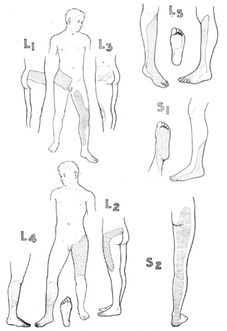 Dermatome (anatomy) - Dermatomes of the Lower Limb (Modified, from Fender, after Foerster)