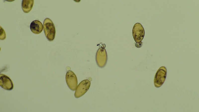 File:Hatching of F. hepatica miracidia.ogv