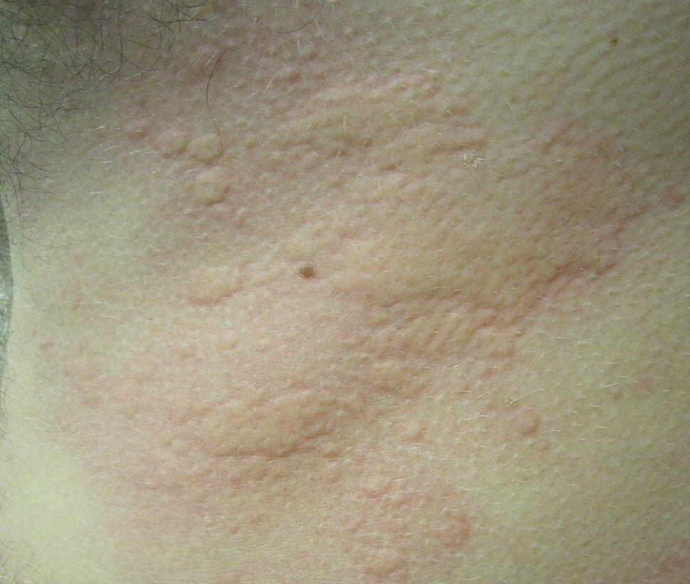 Hives2010