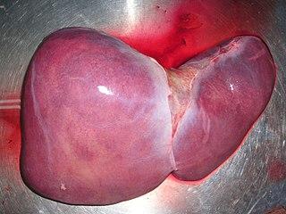 Liver transplantation medical procedure