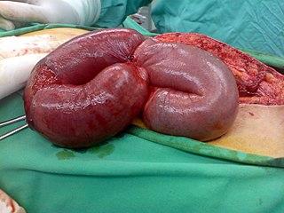 Bowel infarction