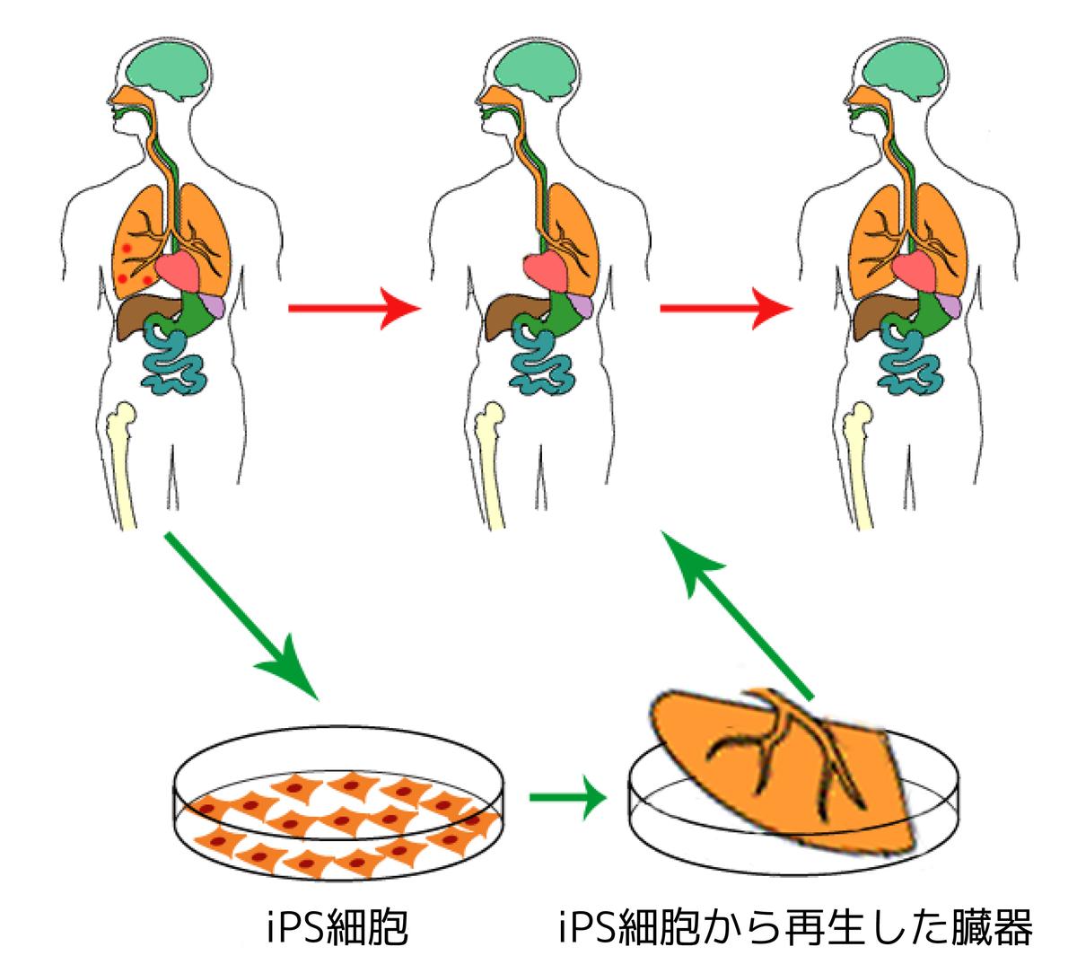 人工多能性幹細胞 -…