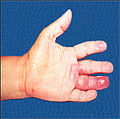 Leprosy hand affected fourth digit.jpg