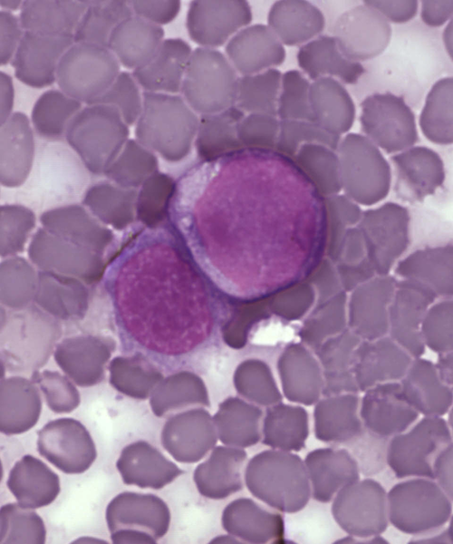Archivo:Leukemia cells.png