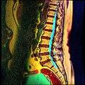 Lumbosacral MRI case 05 09.jpg