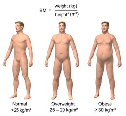 Obesity - Wikipedia