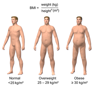 Classification of obesity - Obesity and BMI