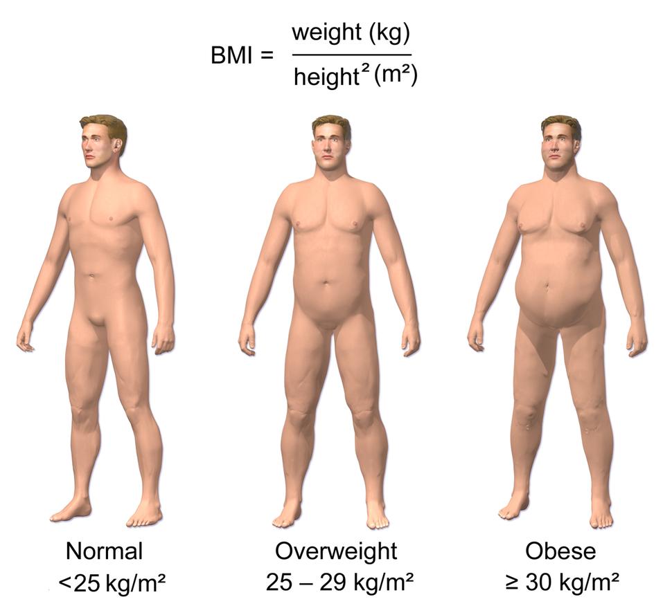 Obesity & BMI
