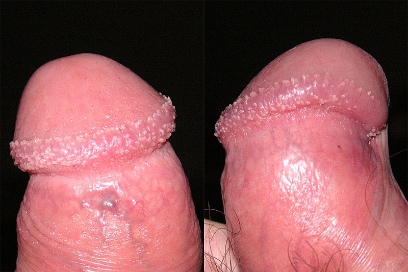 What Are Pearly Penile Papules Caused From