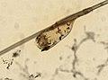Pediculus humanus (YPM IZ 093593).jpeg
