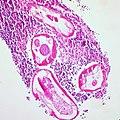Pinworms (Enterobiasis) in the Lumen of the Vermiform Appendix (8612815555).jpg