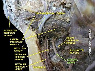 Lingual nerve - Image: Slide 11dddd