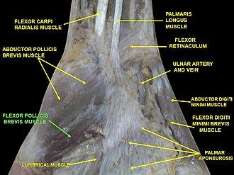 Flexor pollicis brevis muscle - Image: Slide 2VVV