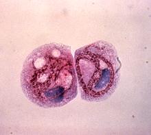 Legionella pneumophila - Wikipedia