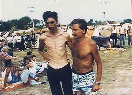 Detainees at the Trnopolje camp, near Prijedor (photograph provided courtesy of the ICTY) Trnopolje Camp.jpg