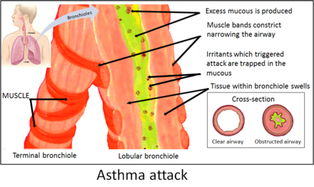Asthma attack.PNG