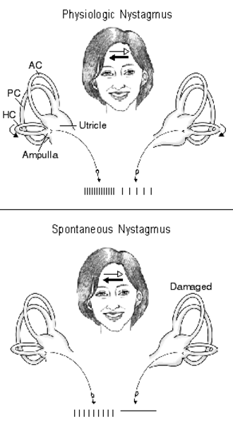 Sense of balance - This figure shows nerve activity associated with rotational-induced physiologic nystagmus and spontaneous nystagmus resulting from a lesion of one labyrinth. Thin straight arrows - direction of slow components; thick straight arrows - direction of fast components; curved arrows - direction of endolymph flow in the horizontal semicircular canals: AC - anterior canal, PC - posterior canal, HC - horizontal canal.