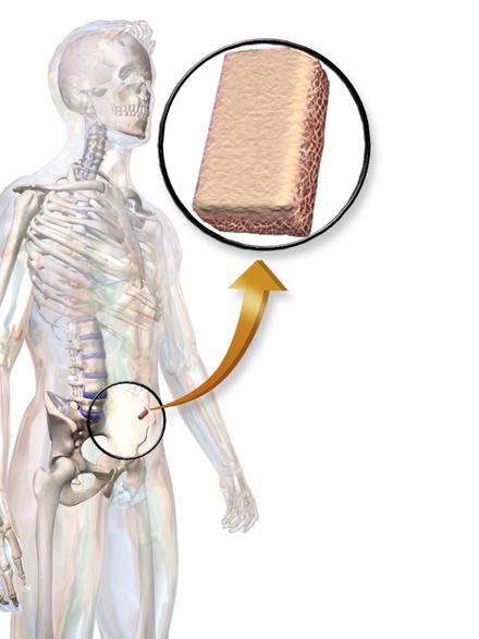 xenograft bone transplantation method essay The aim of the present study was to develop an effective method for xenogenic bone in vivo transplantation of acellular bone of xenograft is.