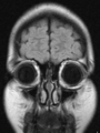 Brain MRI FLAIR Cor 142219.png