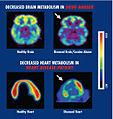 Brain and heart metabolism Drugs.jpg