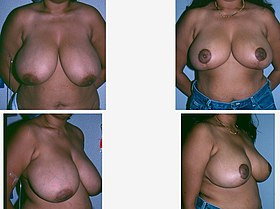 Breast Reduction-four-plate photograph.jpg