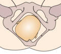Cephalic presentation - right occipito-posterior.png