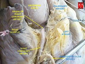 Right coronary artery - Image: Coronary arteries 2