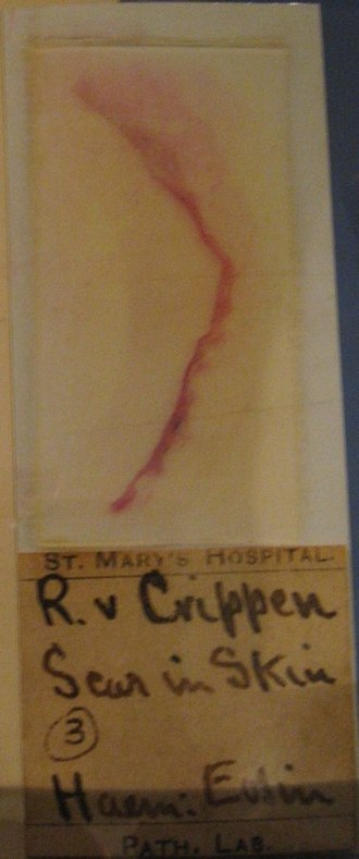 Hawley Harvey Crippen - Alleged scar tissue used in evidence at the trial, claimed to be that of Cora Crippen