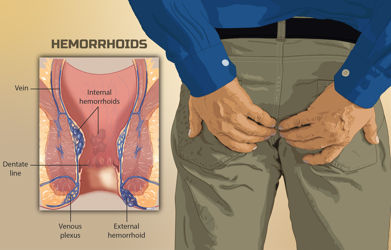 person suffering from Piles (Hemorrhoids).png