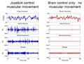 Electromyograms comparing monkey's control of telerobotic arm via joystick and brain control only.tiff