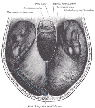 Tentorial incisure - Tentorial incisure seen from above. An easy description is simply the hole created by the tentorium cerebelli