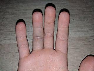 Jammed finger Medical condition