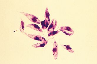 Leishmania - Leishmania tropica