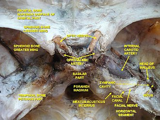 Tympanic cavity - Image: Occipital bone dissection