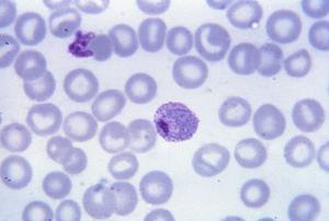 Plasmodiidae - A mature Plasmodium vivax trophozoite
