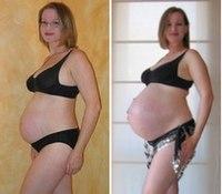 Реферат поздняя беременность