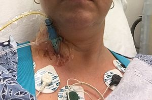 A patient undergoing a procedure where an 8 F introducer was placed in the right jugular vein using a 5F MAK access kit. A 7 F balloon tipped catheter was introduced via the venous sheath, the balloon was inflated and the catheter was advanced through the right heart chambers into the pulmonary capillary wedge position. Right sided pressures were obtained and cardiac output was measured using thermodilution.