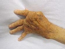 Revmatoidní artritida na rukou