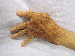ujjgyulladás kezelés homeopátia)