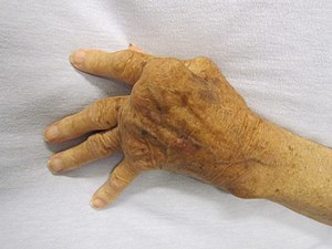 photograph of elderly hand depicting advanced rheumatoid arthritis
