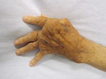 English: A hand affected by rheumatoid arthritis