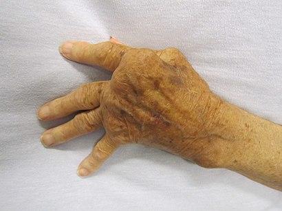 photograph of elderly hand depicting advanced rheumatoid arthritis