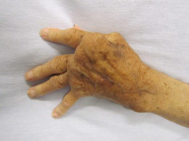 Hand hos en person drabbad av reumatoid artrit.