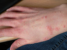 Hand Infection Imptigo Home Remedies