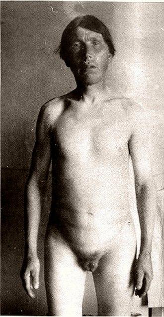 "Penectomy - Male member of skoptsy-sect (""greater seal"")."
