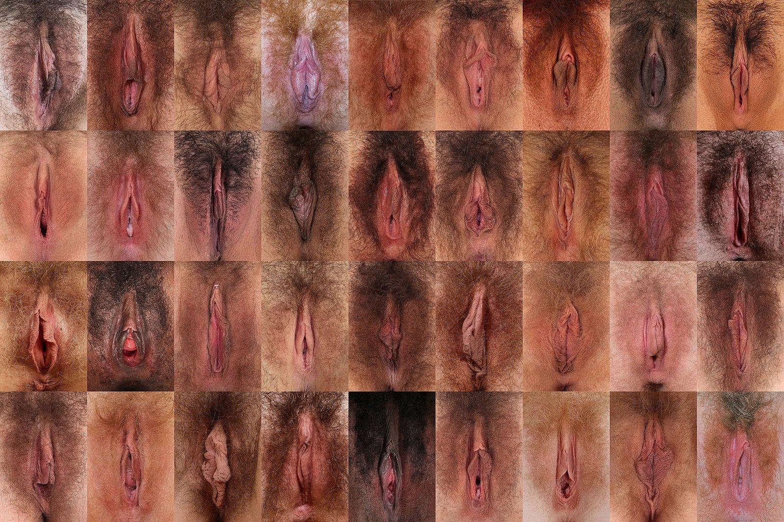 классификации фото вагин по
